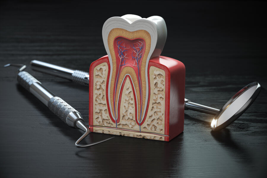 root canal Tooth model cross section with dental tools on black wooden table. Close up. Dental treatmant and hygiene concept. 3d illustration